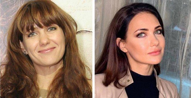 Актриса Екатерина Климова до и после пластики?