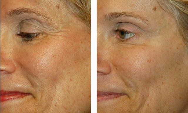 ботулинотерапия для коррекции морщин вокруг глаз