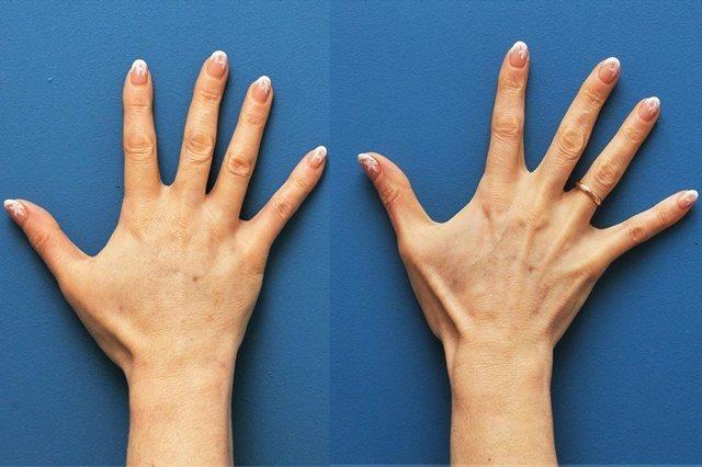 Что такое лазерное омоложение кистей рук