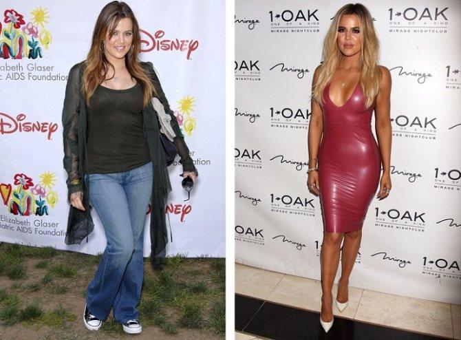 Хлои Кардашьян до и после похудения