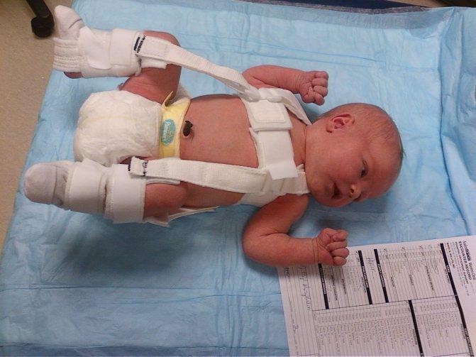 Как дисплазию лечат у новорожденных