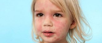 Красные пятна на лице у ребенка