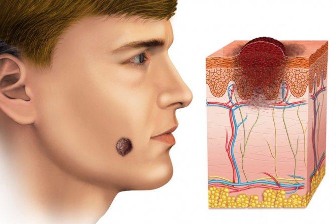 лечение меланомы на первой стадии
