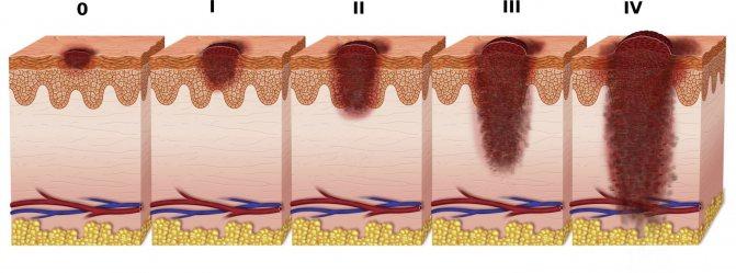 лечение меланомы на стадиях