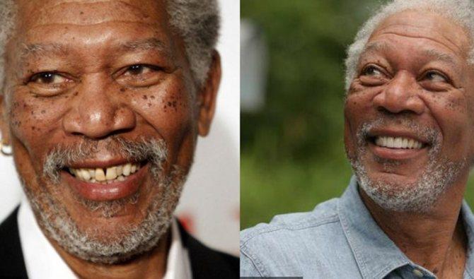 Морган Фримен до и после исправления зубов