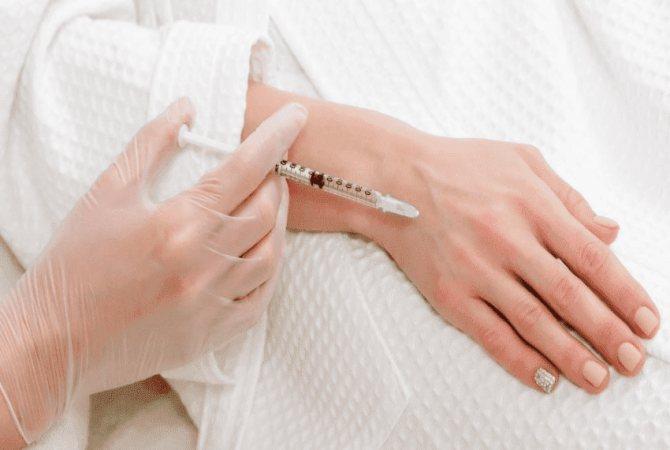 Омолаживание рук с помощью биоревитализации