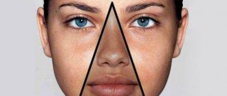 Побледнение или покраснение носогубного треугольника