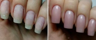 Почему ногти портятся от покрытия