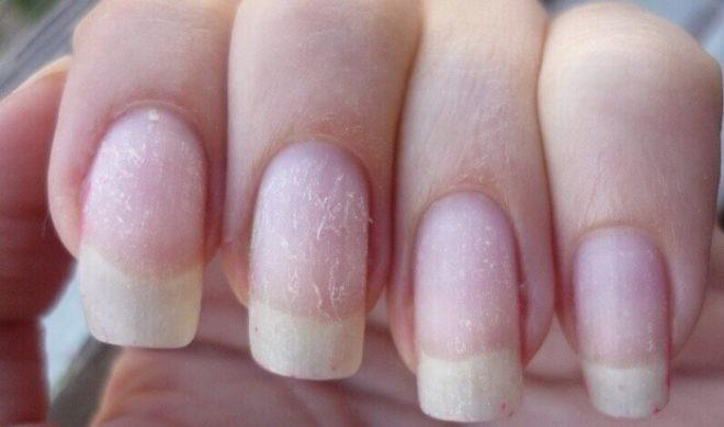 Почему ногти портятся