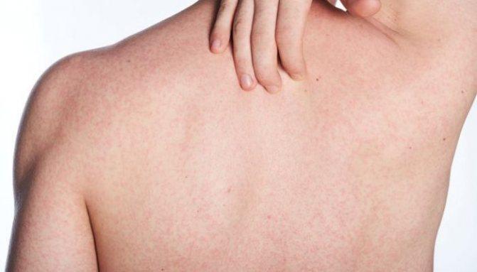 Причины зуда на спине и способы его лечения: помогаем избавиться от неприятного симптома