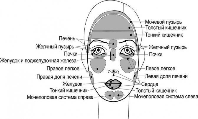 Румянец на щеках – признак здоровья или развития купероза?