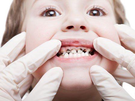 Сколько зубов у ребенка в 2 года или как растут зубы у 2 годовалых детей, особенности роста, заболевания и лечение