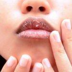 Трещины на губах — причины и лечение в домашних условиях