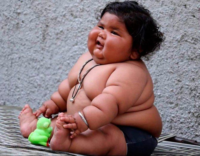 У крупных детей складок на теле много