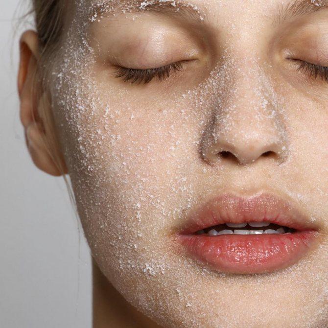 уход за чувствительной кожей лица правила