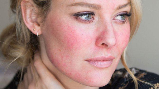 уход за чувствительной проблемной кожей лица