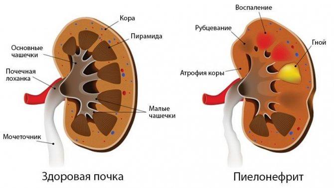 Заболевания, которые могут угрожать беременности